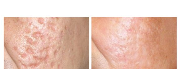 8x Strecth mark/Cellulite Treatments