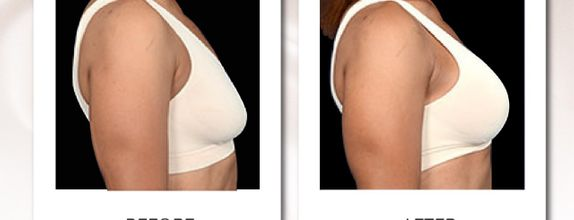 15x Breast Lift Treatment