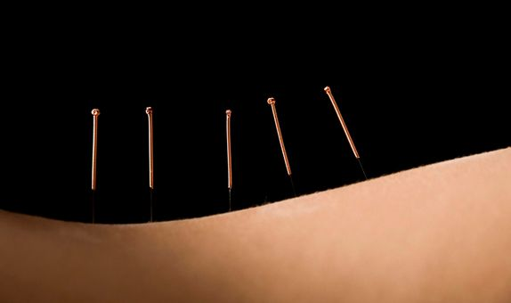 Acupuncture Slimming Treatment