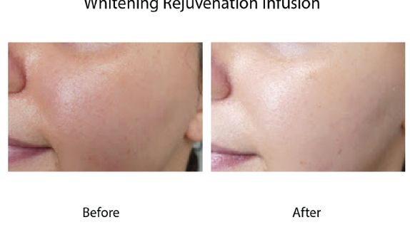 4x Whitening Infusion