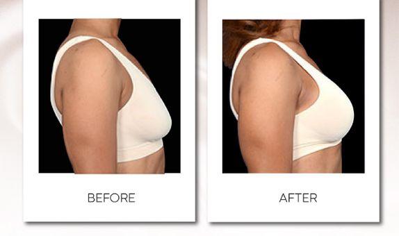 15x Breast Lift Treatment