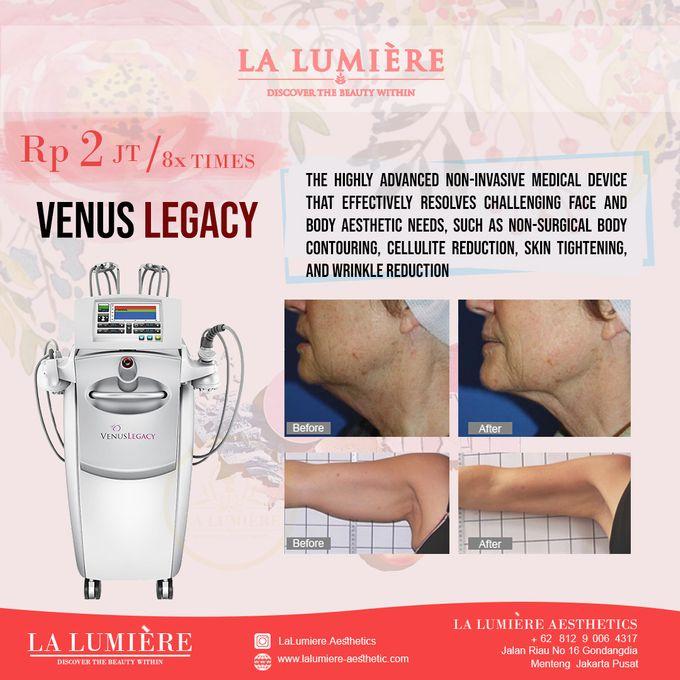 VENUS LEGACY by la lumiere aesthetics - 001