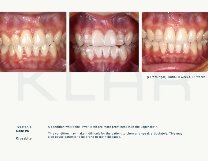 Witness the KLAR journey yourself by KLAR Smile - 012