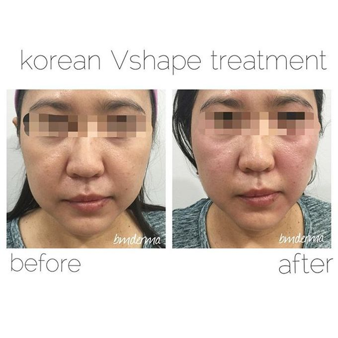 3D Face contouring by BMDERMA Clinic - 003