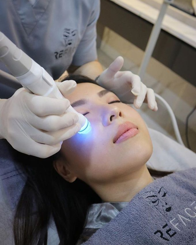 Our Treatments by Reface Clinic - 008
