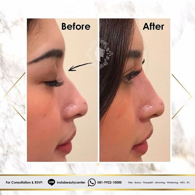 Hasil Before After by INSTA BEAUTY CENTER - 017
