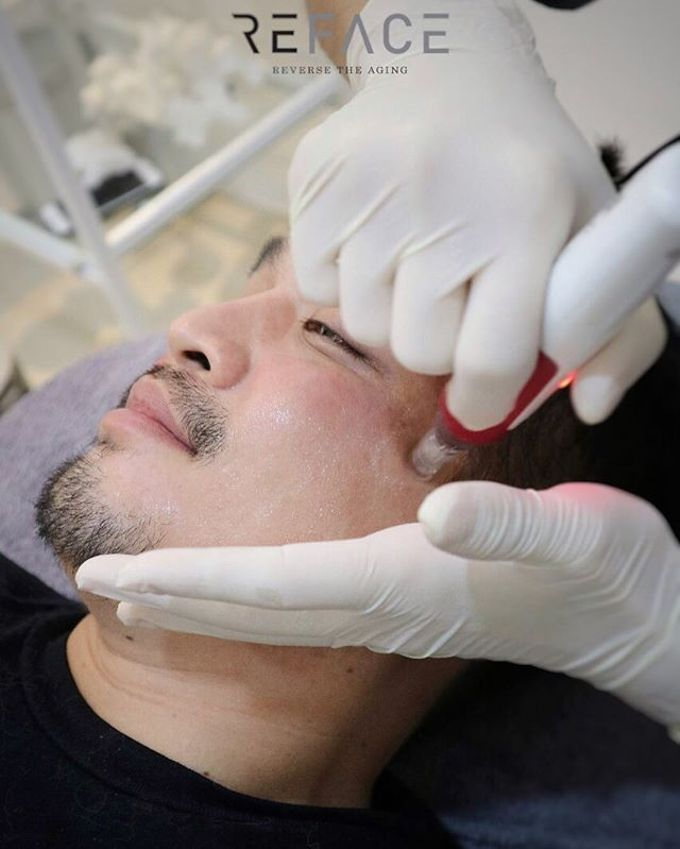 Our Treatments by Reface Clinic - 006