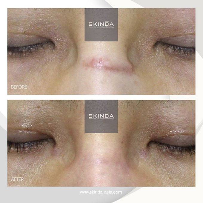 FOTO BEFORE AFTER by SKINDA Medical Skin Care & Dermatology Center - 023