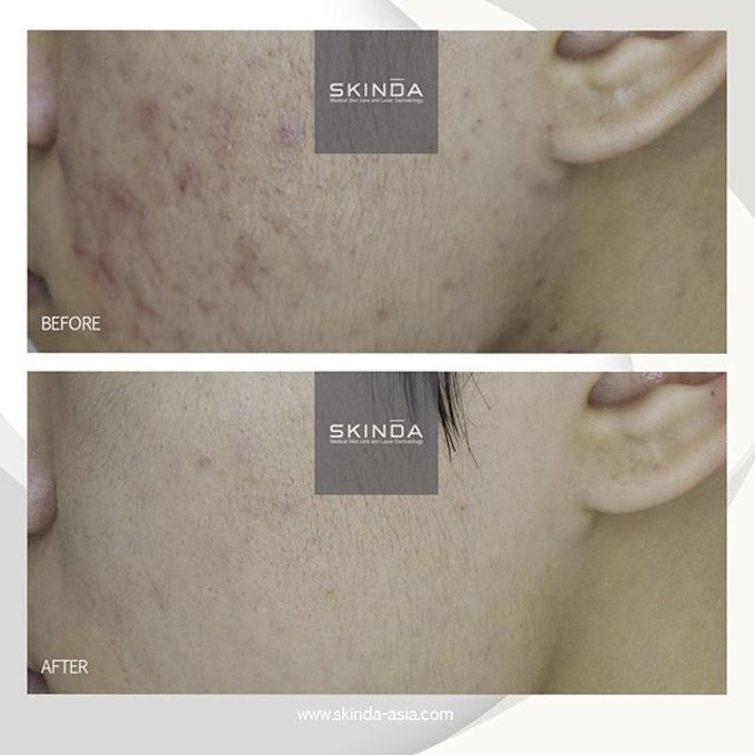 FOTO BEFORE AFTER by SKINDA Medical Skin Care & Dermatology Center - 021