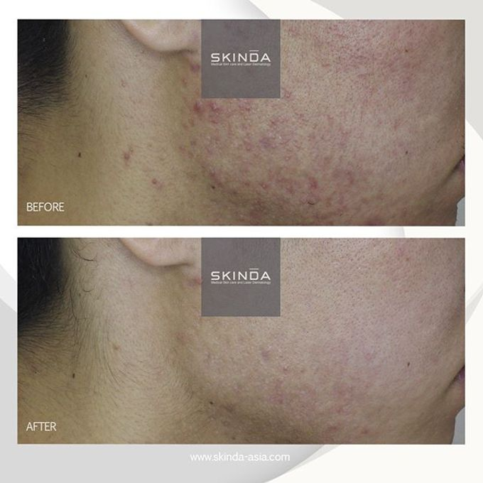 FOTO BEFORE AFTER by SKINDA Medical Skin Care & Dermatology Center - 022