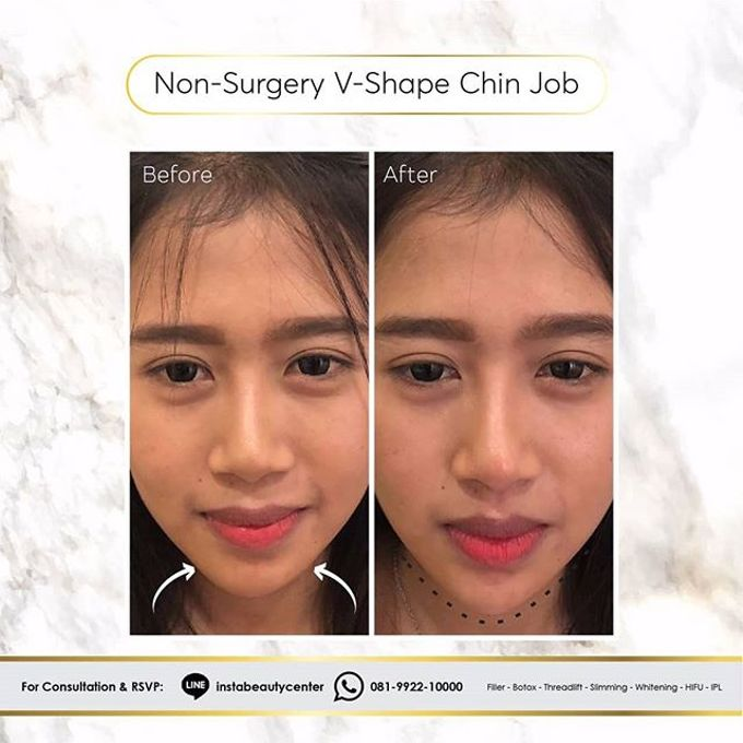 Hasil Before After by INSTA BEAUTY CENTER - 038