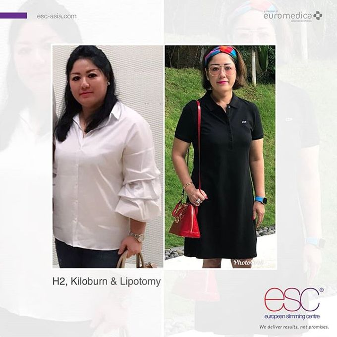 LIPOTOMY by EUROPEAN SLIMMING CENTRE (ESC) & EUROSKINLAB (ESL) - 003