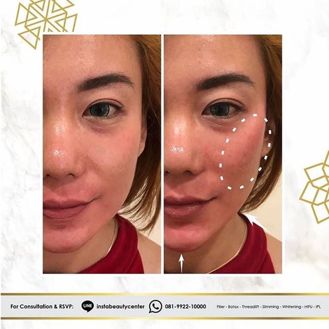 Hasil Before After by INSTA BEAUTY CENTER - 035