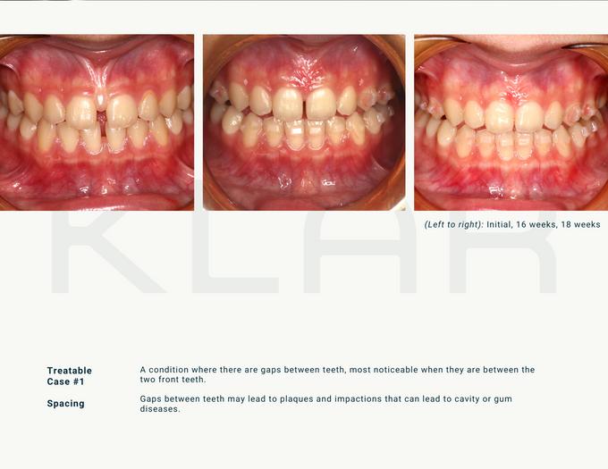 Witness the KLAR journey yourself by KLAR Smile - 004