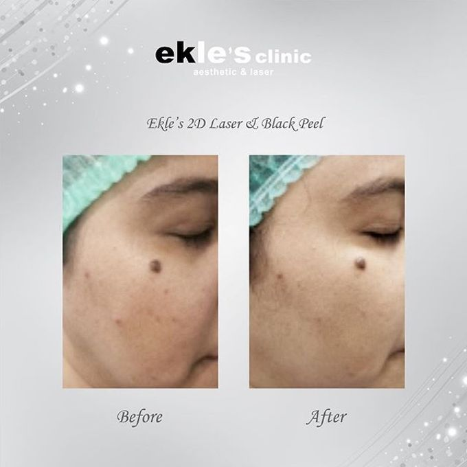 Before & After  by Ekle's Clinic Aesthetic & Laser - 031