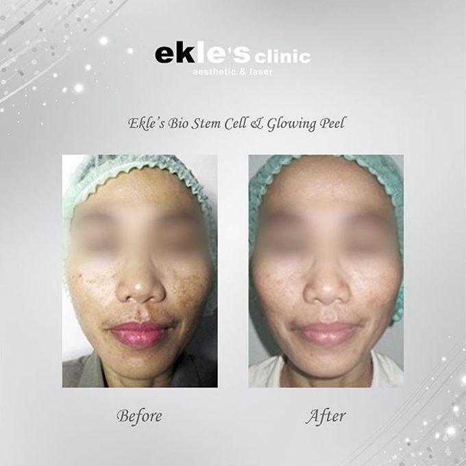 Before & After  by Ekle's Clinic Aesthetic & Laser - 030