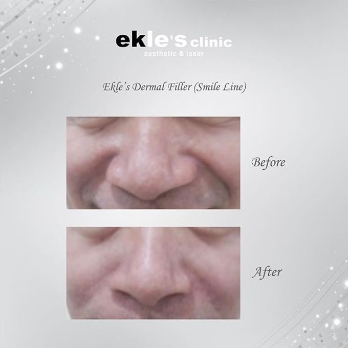 Before & After  by Ekle's Clinic Aesthetic & Laser - 029
