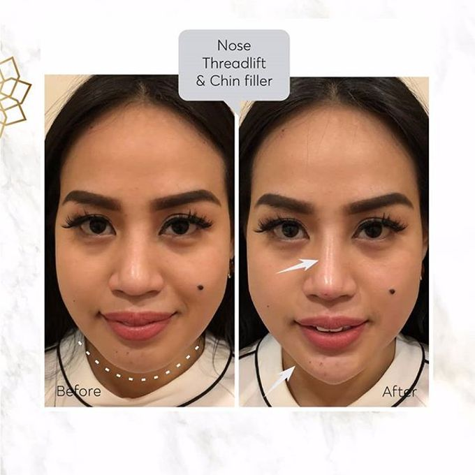 Hasil Before After by INSTA BEAUTY CENTER - 033