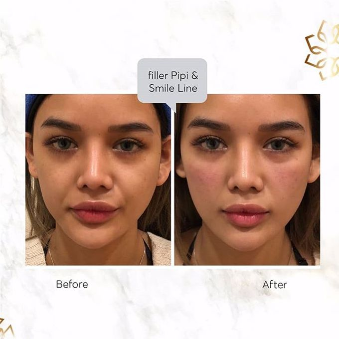 Hasil Before After by INSTA BEAUTY CENTER - 034