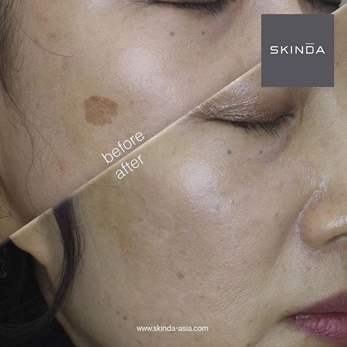 FOTO BEFORE AFTER by SKINDA Medical Skin Care & Dermatology Center - 020