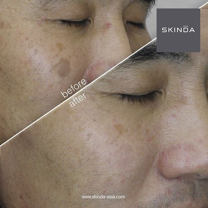 FOTO BEFORE AFTER by SKINDA Medical Skin Care & Dermatology Center - 019