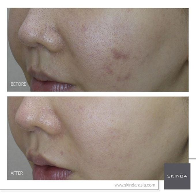 FOTO BEFORE AFTER by SKINDA Medical Skin Care & Dermatology Center - 018