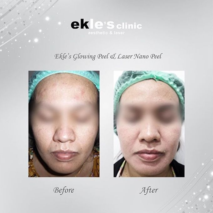 Before & After  by Ekle's Clinic Aesthetic & Laser - 028
