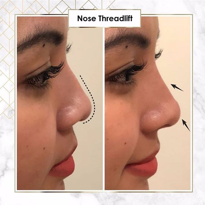 Hasil Before After by INSTA BEAUTY CENTER - 029