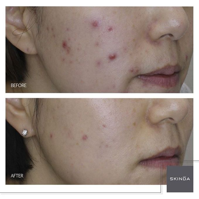 FOTO BEFORE AFTER by SKINDA Medical Skin Care & Dermatology Center - 015