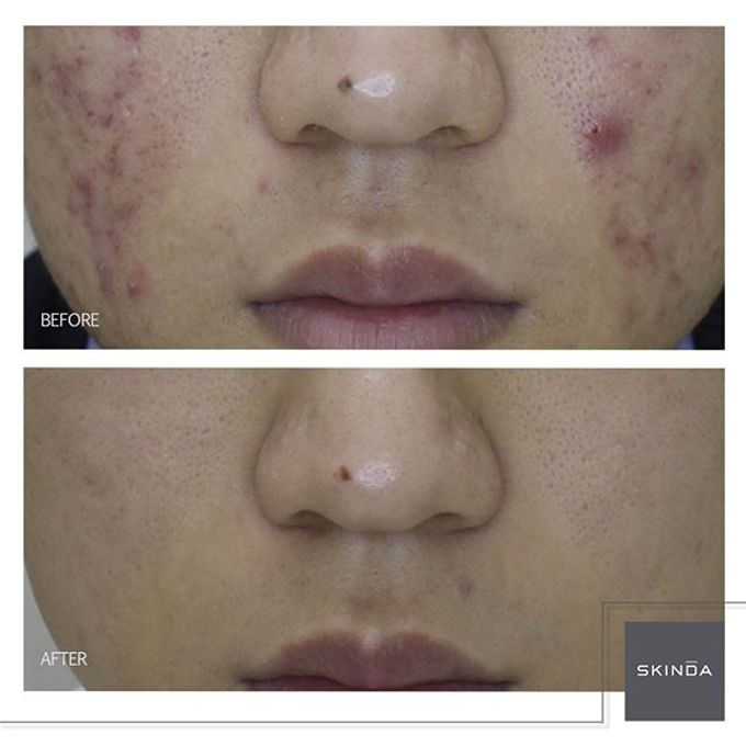 FOTO BEFORE AFTER by SKINDA Medical Skin Care & Dermatology Center - 014