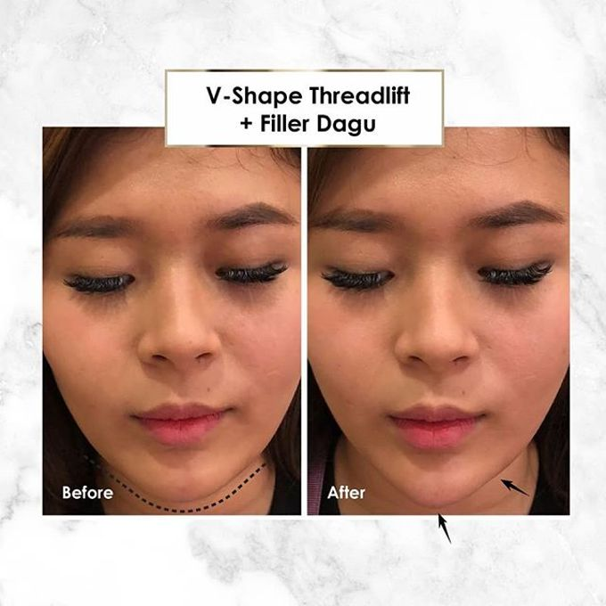 Hasil Before After by INSTA BEAUTY CENTER - 028