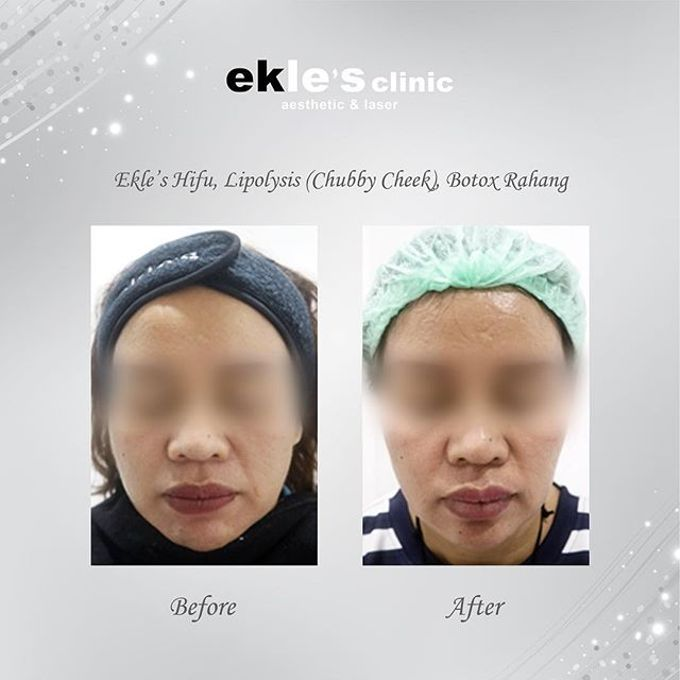 Before & After  by Ekle's Clinic Aesthetic & Laser - 027