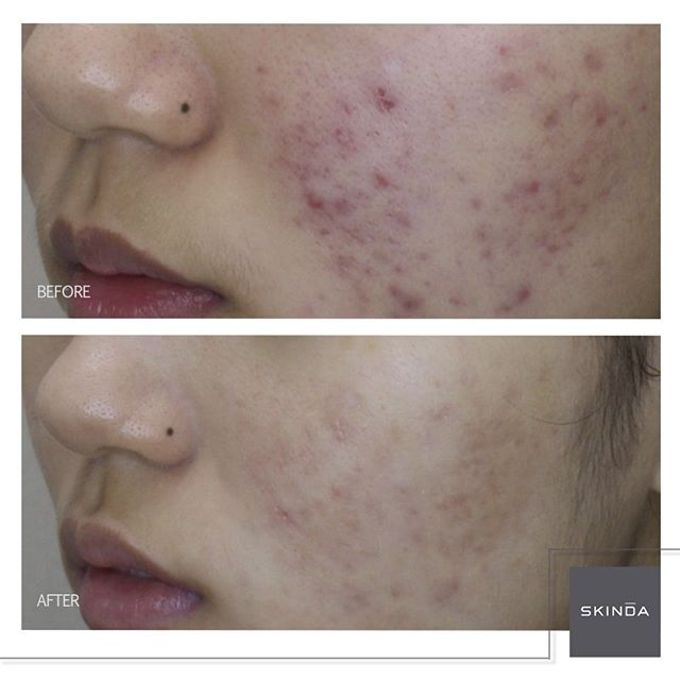 FOTO BEFORE AFTER by SKINDA Medical Skin Care & Dermatology Center - 012