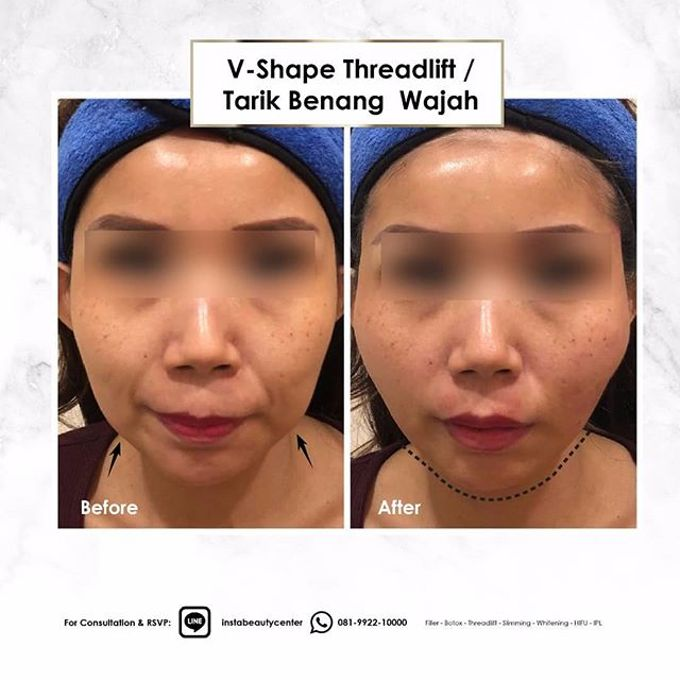 Hasil Before After by INSTA BEAUTY CENTER - 027