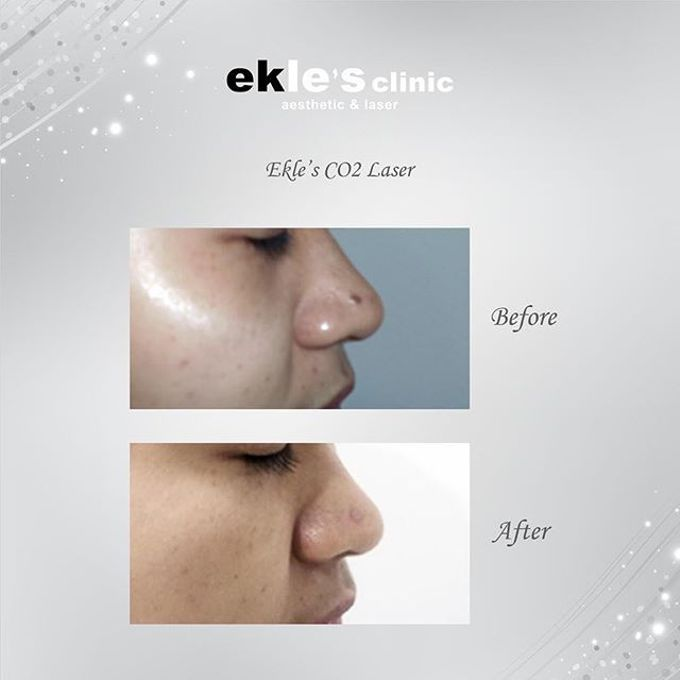 Before & After  by Ekle's Clinic Aesthetic & Laser - 025