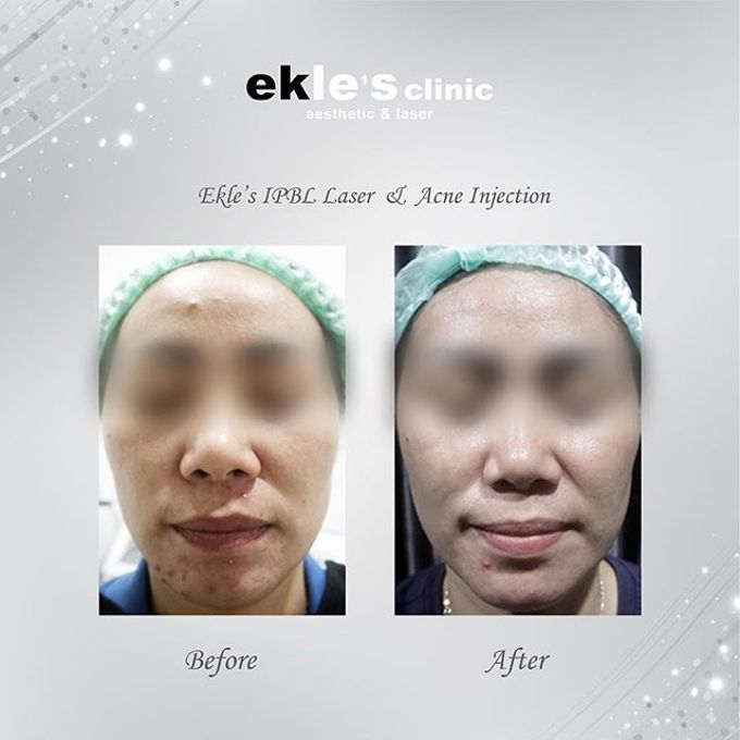 Before & After  by Ekle's Clinic Aesthetic & Laser - 022