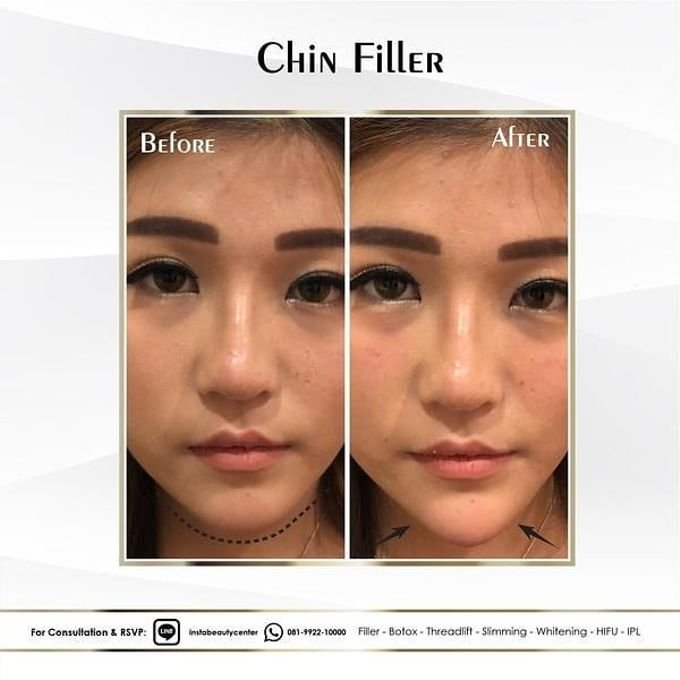 Hasil Before After by INSTA BEAUTY CENTER - 021
