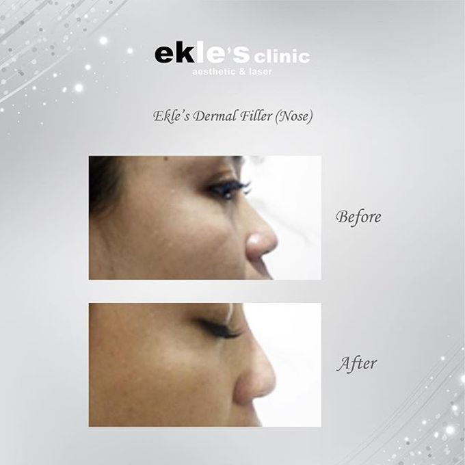 Before & After  by Ekle's Clinic Aesthetic & Laser - 018