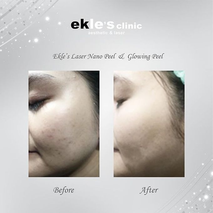 Before & After  by Ekle's Clinic Aesthetic & Laser - 019