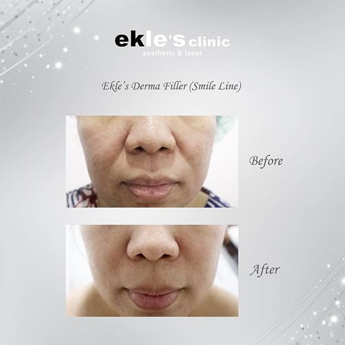 Before & After  by Ekle's Clinic Aesthetic & Laser - 017