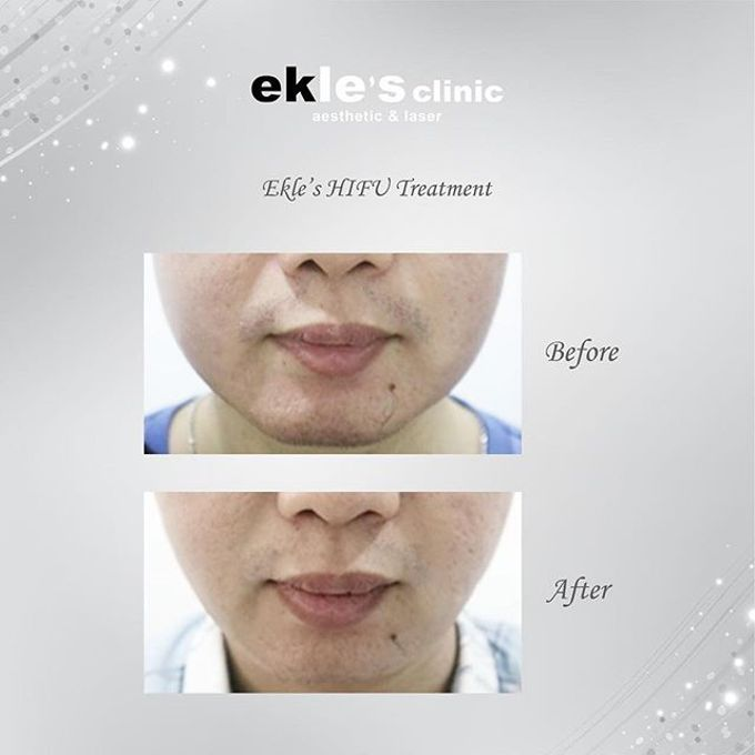 Before & After  by Ekle's Clinic Aesthetic & Laser - 020