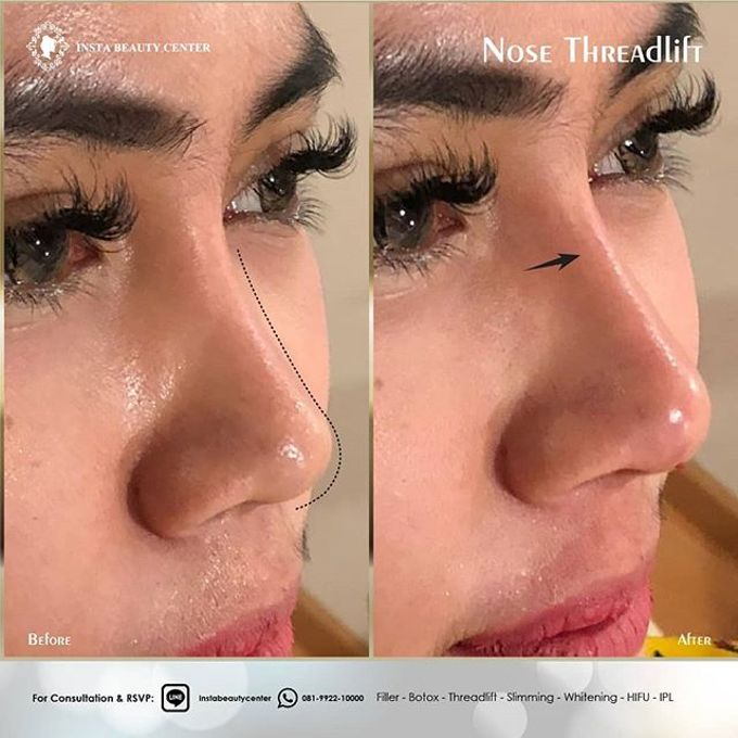 Hasil Before After by INSTA BEAUTY CENTER - 019