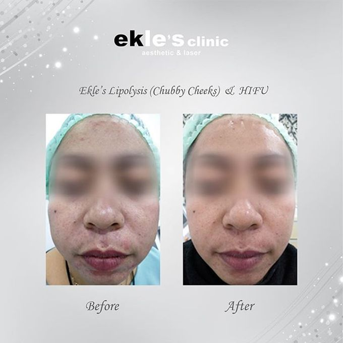 Before & After  by Ekle's Clinic Aesthetic & Laser - 016