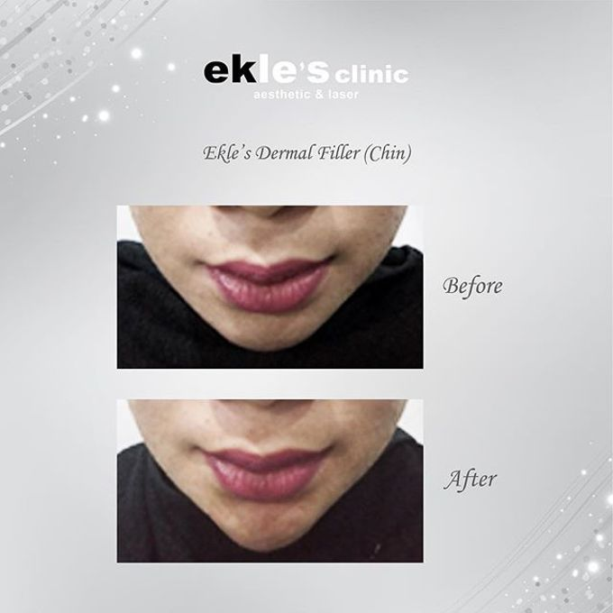 Before & After  by Ekle's Clinic Aesthetic & Laser - 015