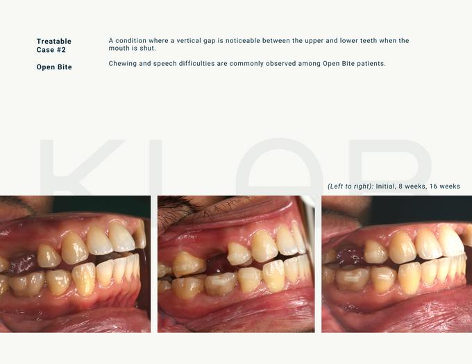 Witness the KLAR journey yourself by KLAR Smile - 005