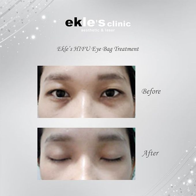 Before & After  by Ekle's Clinic Aesthetic & Laser - 013