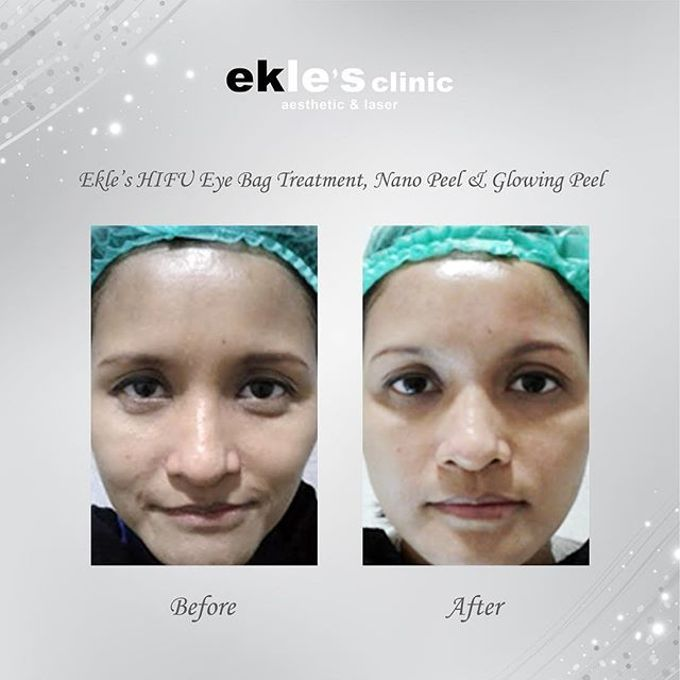 Before & After  by Ekle's Clinic Aesthetic & Laser - 012