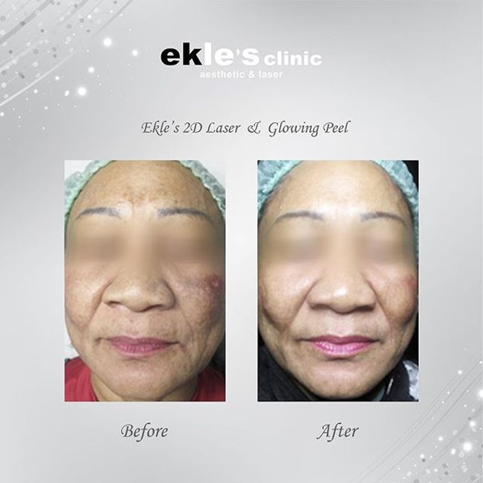 Before & After  by Ekle's Clinic Aesthetic & Laser - 010