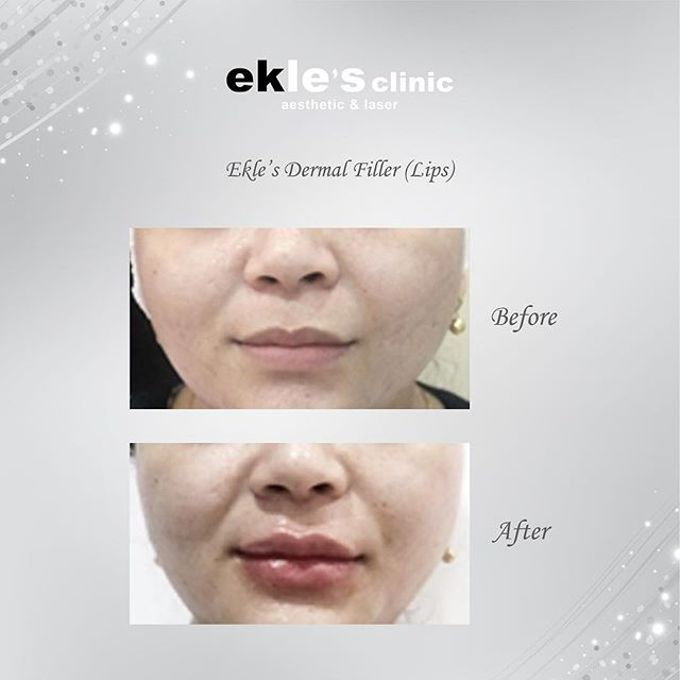 Before & After  by Ekle's Clinic Aesthetic & Laser - 011
