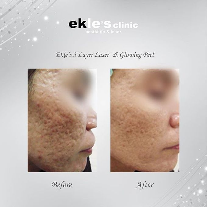 Before & After  by Ekle's Clinic Aesthetic & Laser - 006